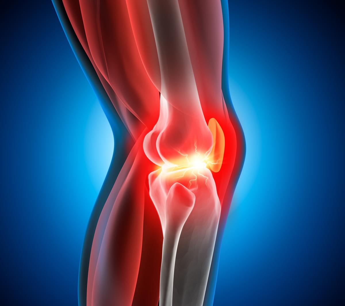 Le mal de genou -